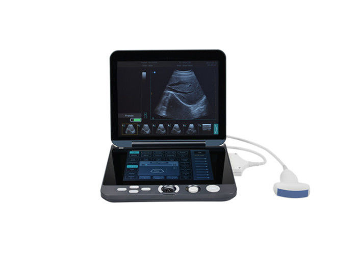 Digital Portable Mobile Laptop Ultrasound Scanner With 12-inch LED Display & 9.7-inch Touch Screen