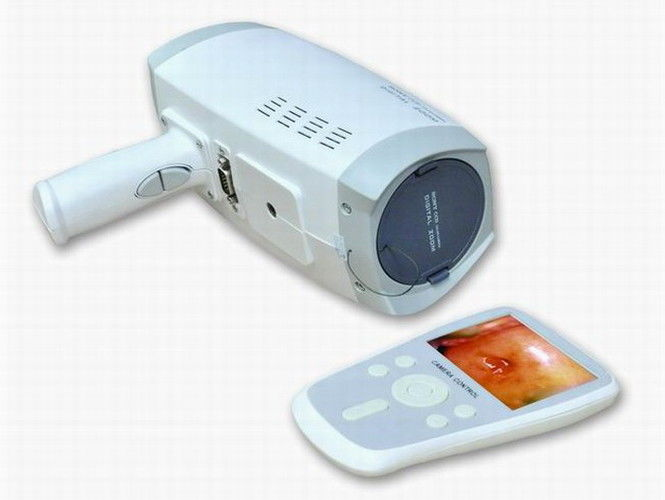 Lens Resolution 800000 Pixels Digital Electronic Colposcope With Automatic Electronic Shutter 3.5 Inch Handheld Screen